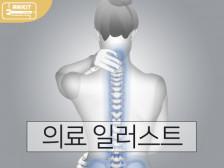 인체/시술과정/전후비교 의료 일러스트 그려드립니다.
