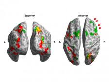 기능자기공명영상 분석 (fMRI  Analysis)해드립니다.